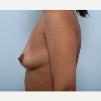 Breast Augmentation before 3377818