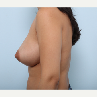 Breast Augmentation after 3377818