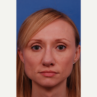 35-44 year old woman treated with Rhinoplasty after 3180029