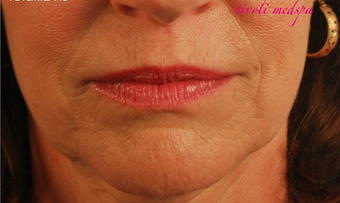 55-64 year old woman treated with Voluma before 1753287