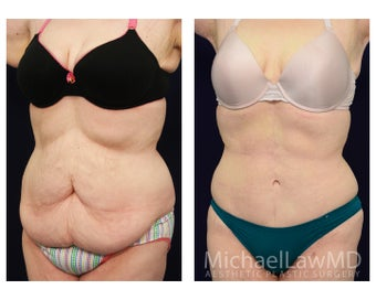 Tummy Tuck - Abdominoplasty after 1072585