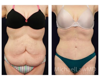 Tummy Tuck - Abdominoplasty before 1072585