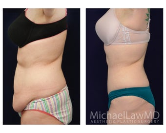 Tummy Tuck - Abdominoplasty 1072585