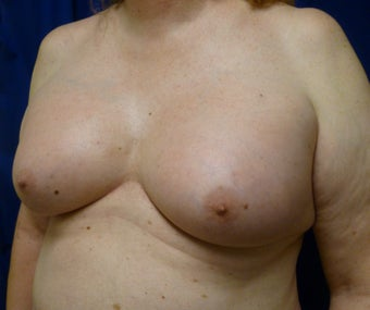 57 Year Old MTF Top Surgery 1269946