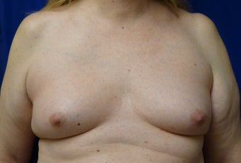 57 Year Old MTF Top Surgery before 1269946