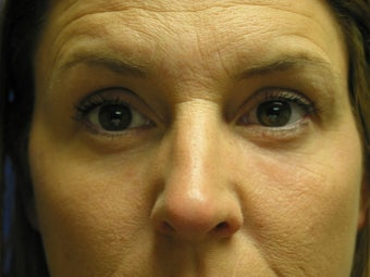 Liquid Facelift with Radiesse 387939