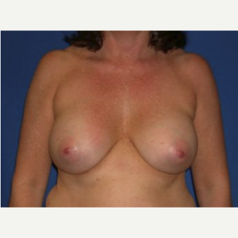 45-54 year old woman treated with Breast Augmentation after 3220111