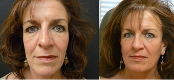 Sculptra combined with Botox creates a beautiful liquid facelift before 604007