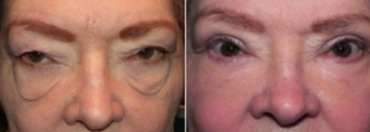 Eyelid Surgery - Festoons before 235788