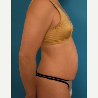 35-44 year old woman treated with Tummy Tuck before 3004880