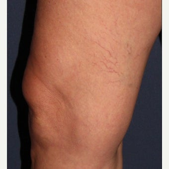 Woman treated with Sclerotherapy for Spider Veins before 1602494