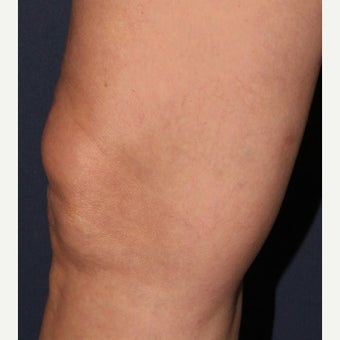 Woman treated with Sclerotherapy for Spider Veins after 1602494
