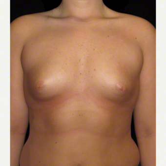 20 year old woman treated with Breast Augmentation before 3104723