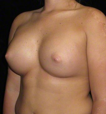 20 year old woman treated with Breast Augmentation 3104723