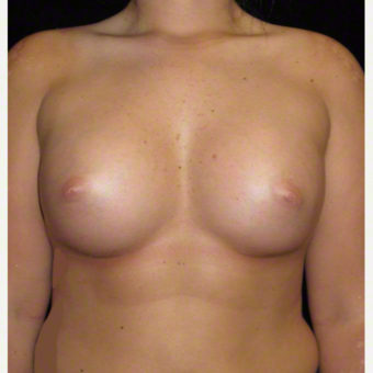 20 year old woman treated with Breast Augmentation after 3104723