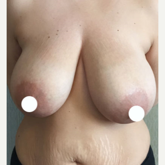 25-34 year old woman treated with Breast Reduction before 3069038