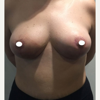 25-34 year old woman treated with Breast Reduction after 3069038