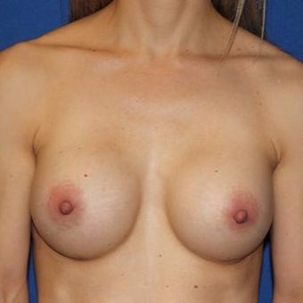 35-44 year old woman treated with Breast Augmentation after 1970657