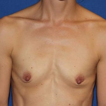 35-44 year old woman treated with Breast Augmentation before 1970657
