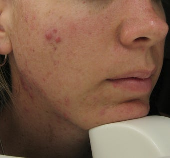 Fraxel repair and Levulan for acne scars and acne before 75376