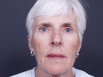 68 year old with facial aging