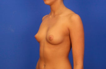 18-24 year old woman treated with Breast Augmentation before 3476158