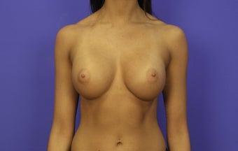 18-24 year old woman treated with Breast Augmentation 3476158