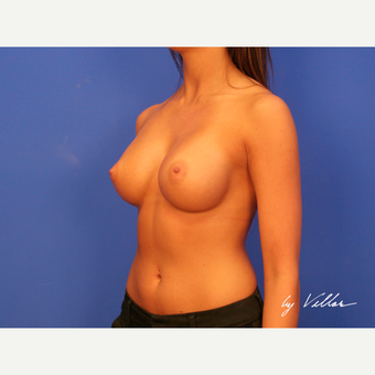 18-24 year old woman treated with Breast Augmentation after 3476158