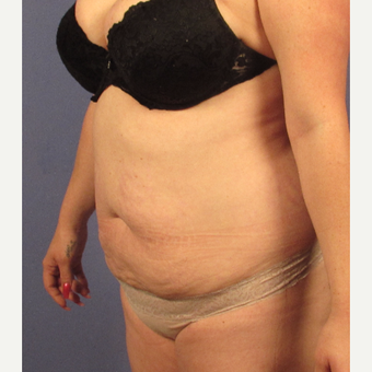 25-34 year old woman treated with Tummy Tuck before 3754154