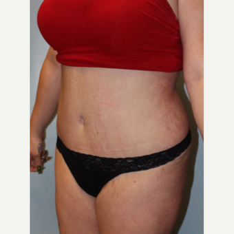 25-34 year old woman treated with Tummy Tuck after 3754154
