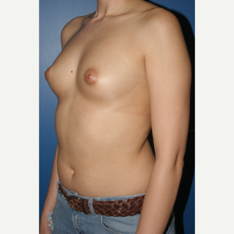 25-34 year old woman treated with Breast Augmentation before 3788602
