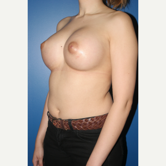 25-34 year old woman treated with Breast Augmentation after 3788602
