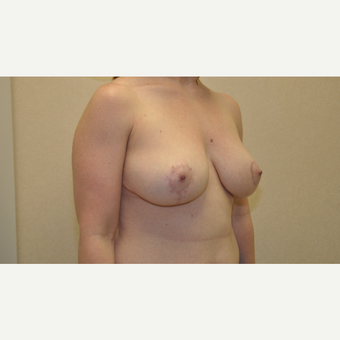 35-44 year old woman treated with Breast Reduction after 3103146