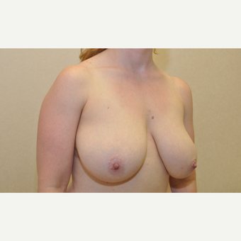 35-44 year old woman treated with Breast Reduction before 3103146