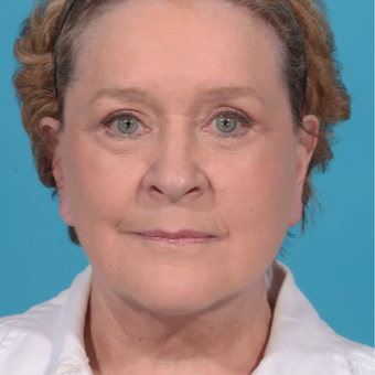 72 year old woman treated with Facelift/necklift, upper eyelid blepharoplasty after 3260366