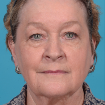 72 year old woman treated with Facelift/necklift, upper eyelid blepharoplasty before 3260366