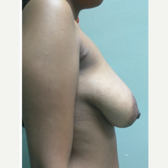 18-24 year old woman treated with Breast Lift before 3228229