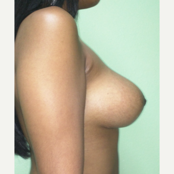 18-24 year old woman treated with Breast Lift after 3228229