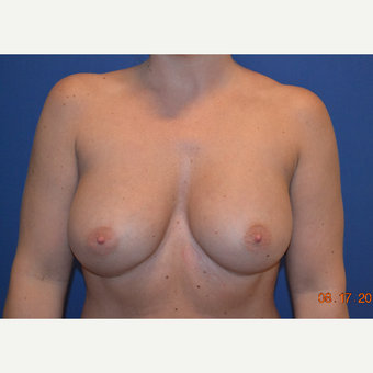 25-34 year old woman treated with Breast Augmentation after 3663907