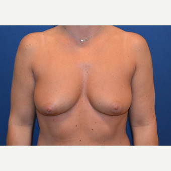 25-34 year old woman treated with Breast Augmentation before 3663907