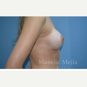 25-34 year old woman treated with Breast Augmentation after 3647373