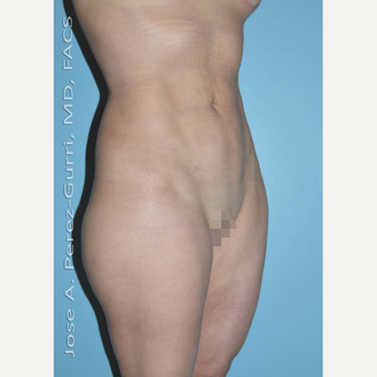 35-44 year old woman treated with Liposuction after 2993942