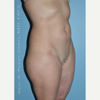 35-44 year old woman treated with Liposuction before 2993942
