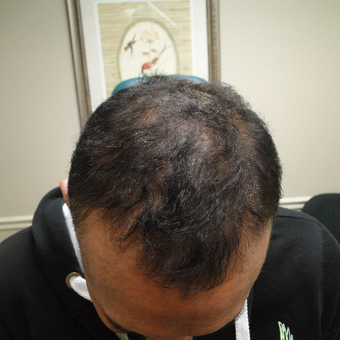 55-64 year old man treated with PRP for Hair Loss after 2732156