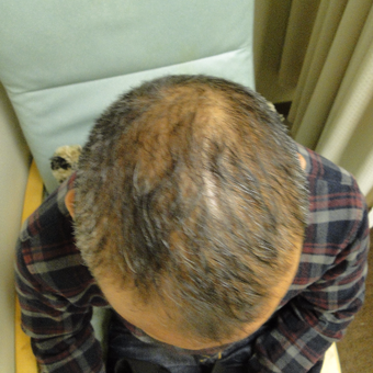 55-64 year old man treated with PRP for Hair Loss before 2732156