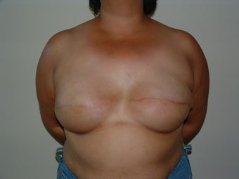 Breast Reconstruction after 735405
