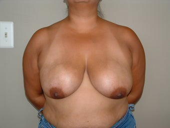 Breast Reconstruction before 735405