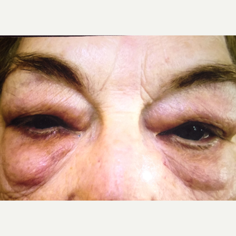 65-74 year old woman treated with Eyelid Surgery before 3333416