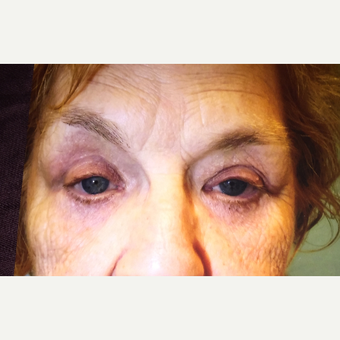 65-74 year old woman treated with Eyelid Surgery after 3333416