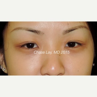 25-34 year old woman treated with Asian Eyelid Surgery before 1748632